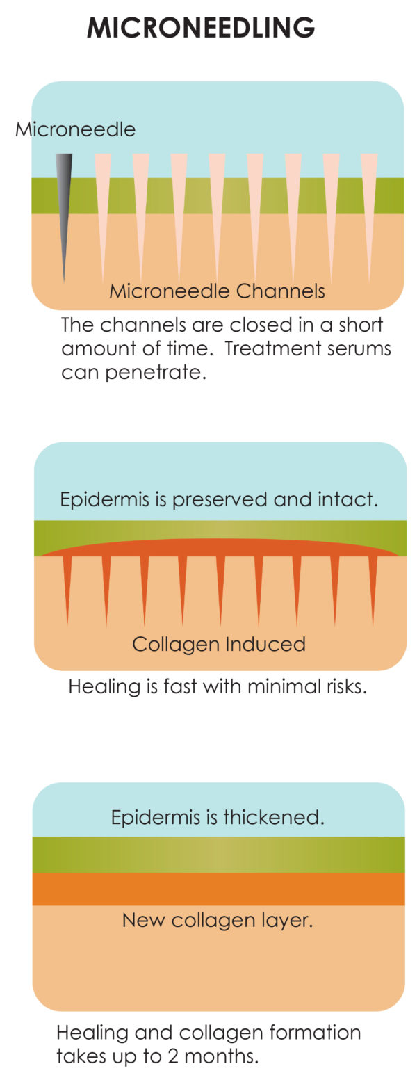 how professional microneedling works